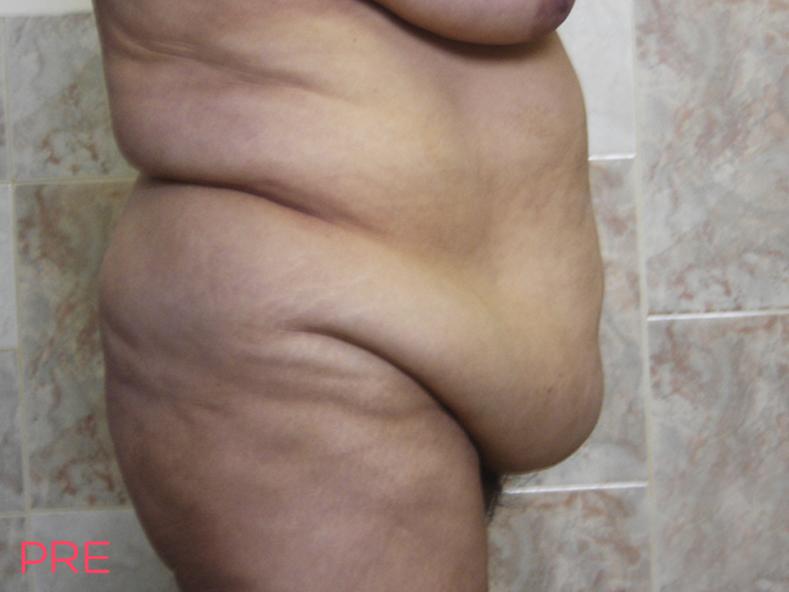 cirugia abdominoplastia 2 pre