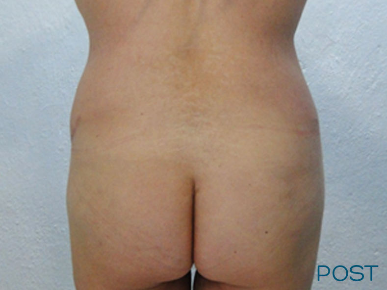 cirugia abdominoplastia 3 post