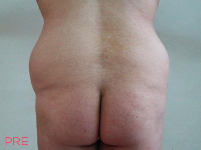 cirugia abdominoplastia 3 pre