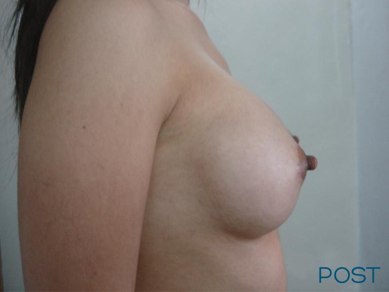 cirugia corporal busto post 1