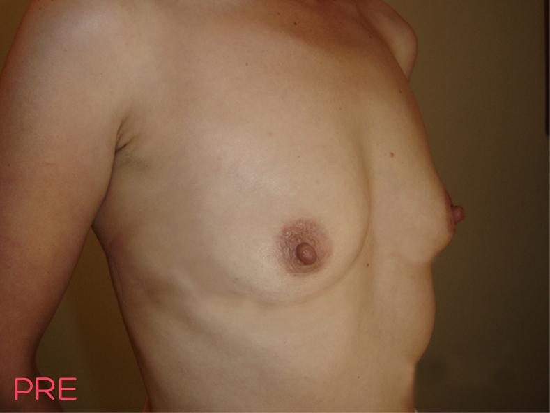 cirugia corporal busto pre 2