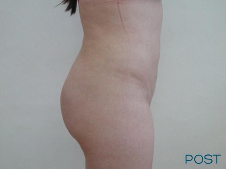 cirugia de contorno corporal lipoescultura y trasplante de grasa a gluteos post