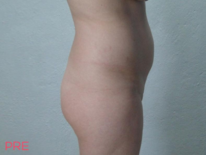 cirugia de contorno corporal lipoescultura y trasplante de grasa a gluteos pre