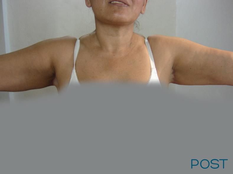 cirugia de contorno corporal pexia braquial post