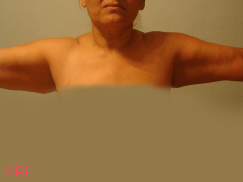 cirugia de contorno corporal pexia braquial pre