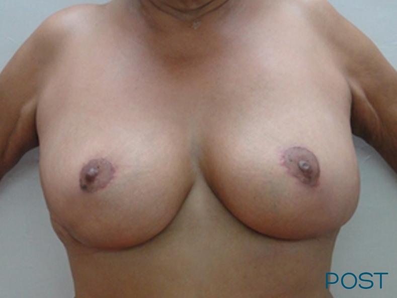 cirugia de contorno corporal reduccion mamaria post