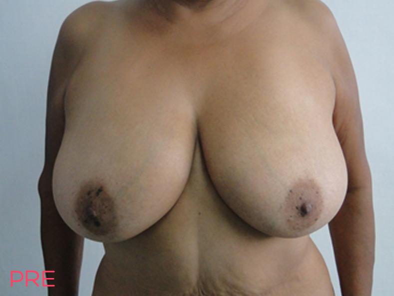 cirugia de contorno corporal reduccion mamaria pre