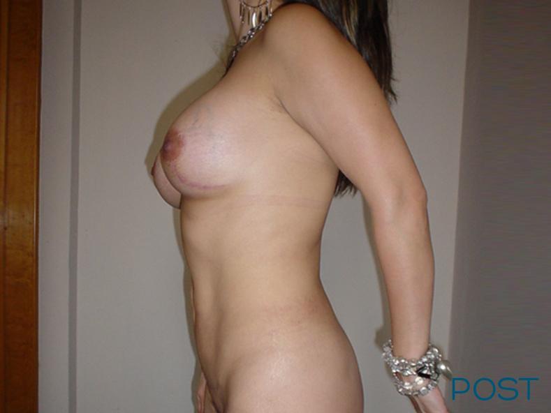 cirugia de liposuccion 1 post