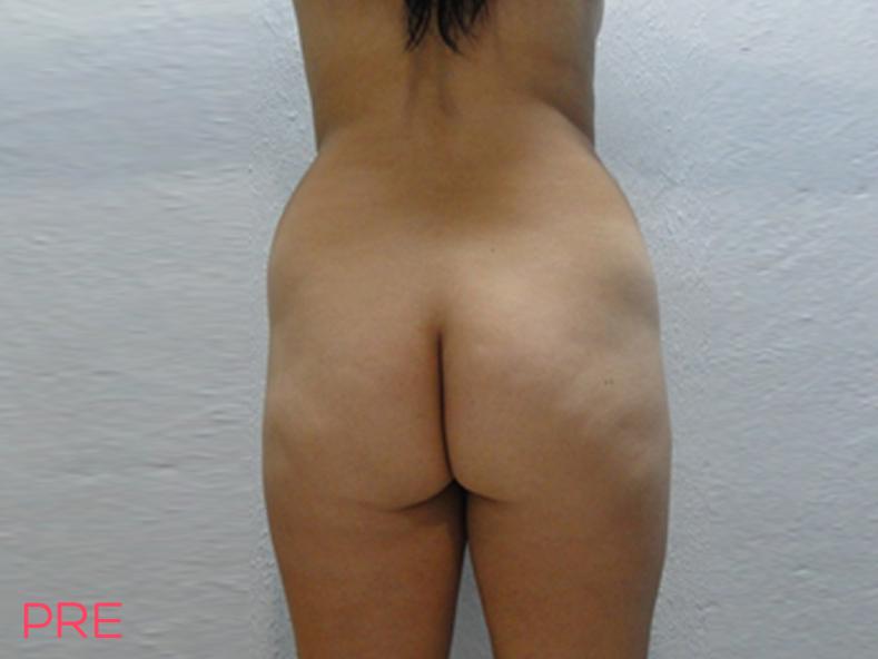 cirugia de liposuccion 2 pre