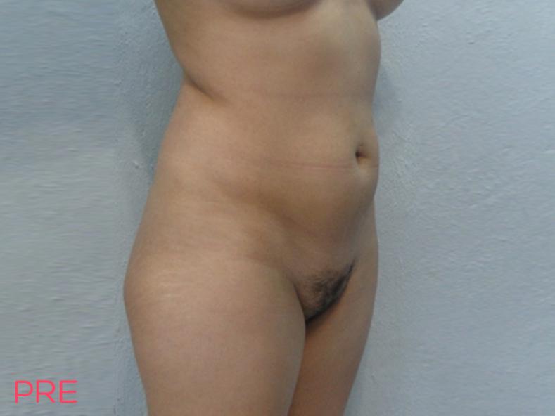 cirugia de liposuccion 3 pre