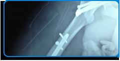 traumatologia-y-ortopedia-1
