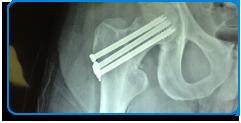 traumatologia-y-ortopedia-2