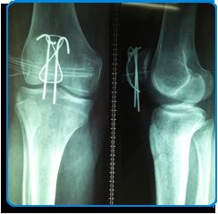 traumatologia y ortopedia rodilla
