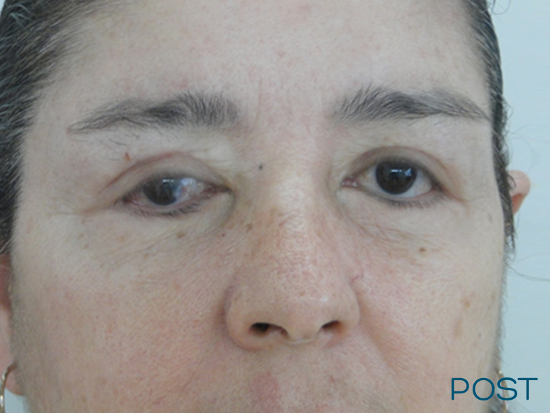 blefaroplastia post