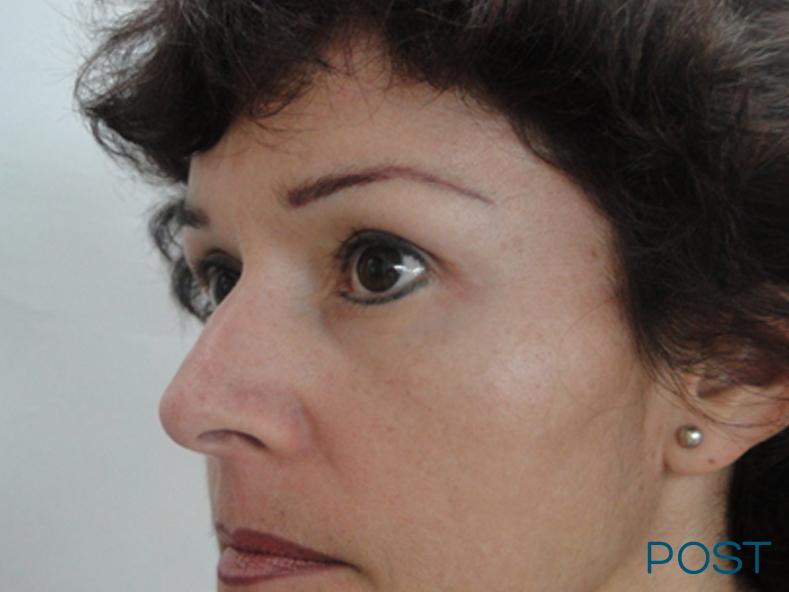 cirugia facial blefaroplastia 1 post