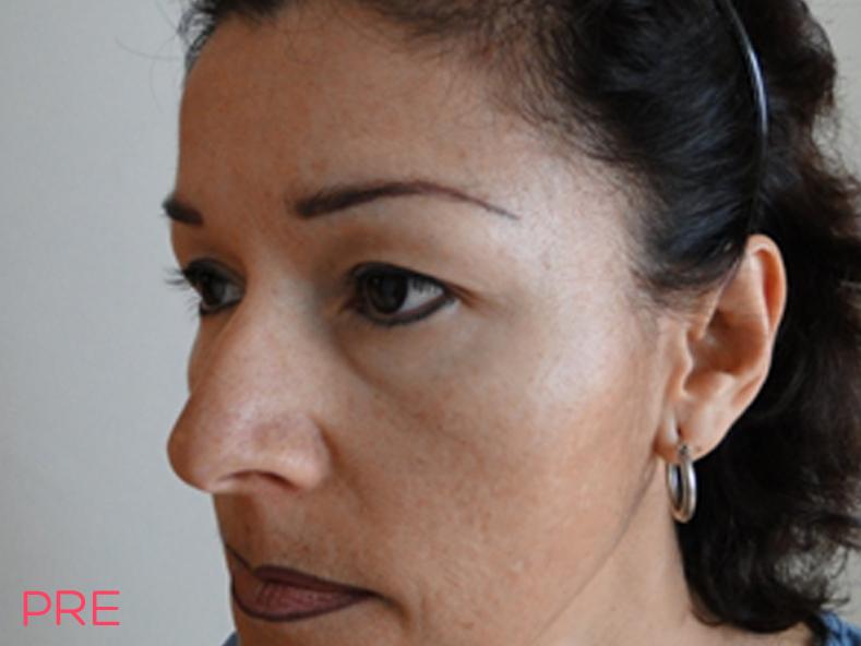 cirugia facial blefaroplastia 1 pre