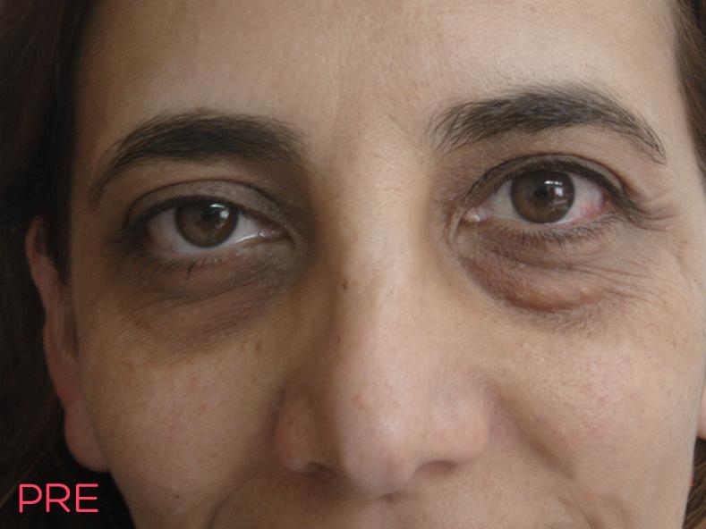 cirugia facial blefaroplastia 3 pre