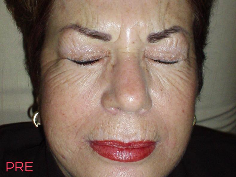 cirugia facial botox pre
