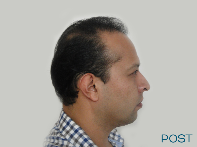 cirugia facial microtrasplante de cabello 1 post