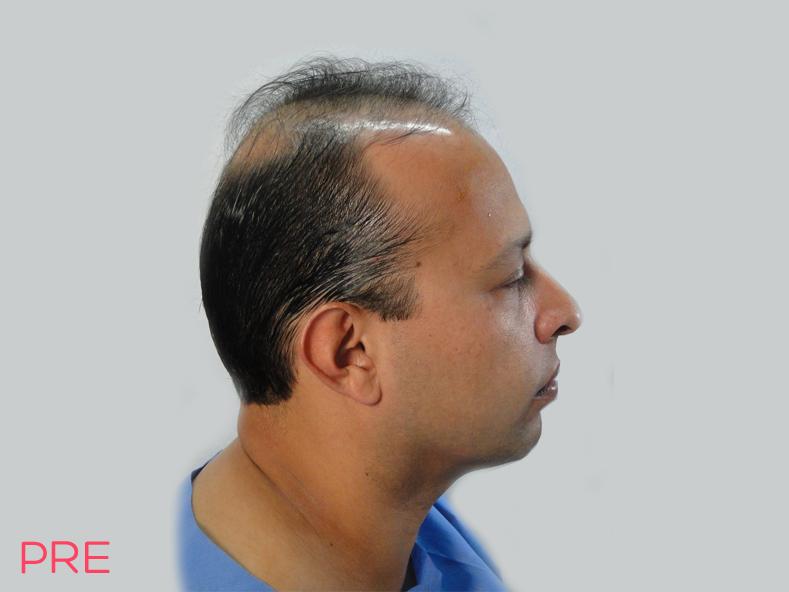 cirugia facial microtrasplante de cabello 1 pre