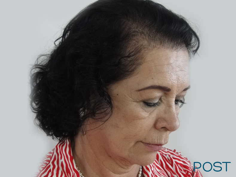 cirugia facial microtrasplante de cabello 3 post