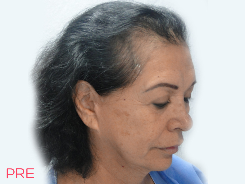 cirugia facial microtrasplante de cabello 3 pre