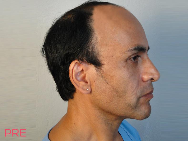cirugia facial microtrasplante de cabello pre