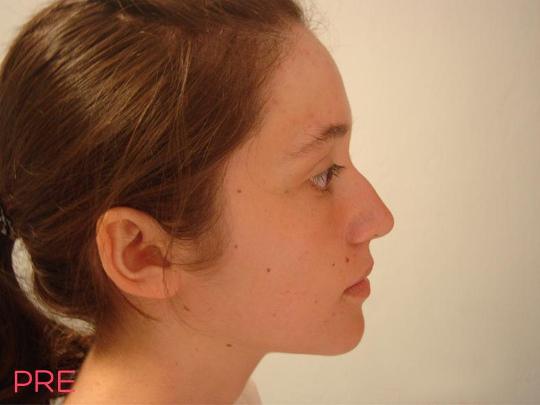 cirugia facial rinoplastia pre