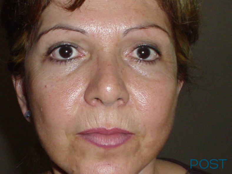 cirugia facial ritidectomia 3 post