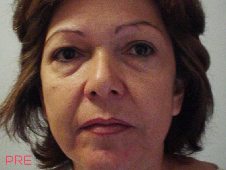 cirugia facial ritidectomia 3 pre