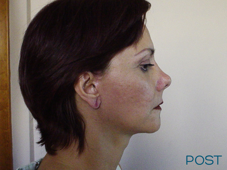 cirugia facial ritidectomia post