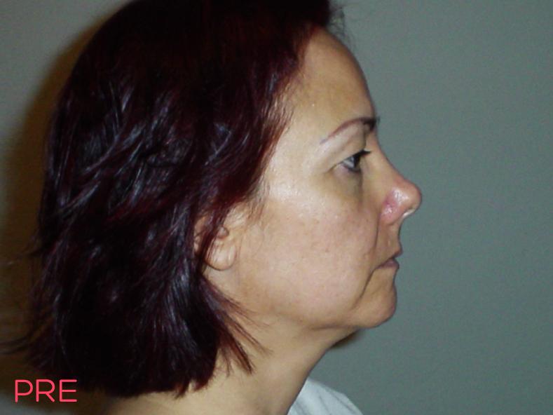 cirugia facial ritidectomia pre