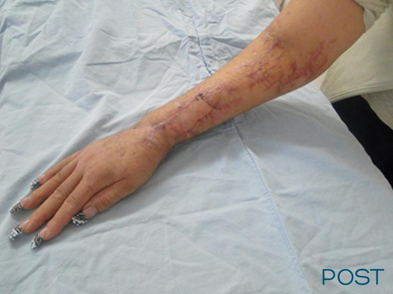 cirugia reconstructiva post 1