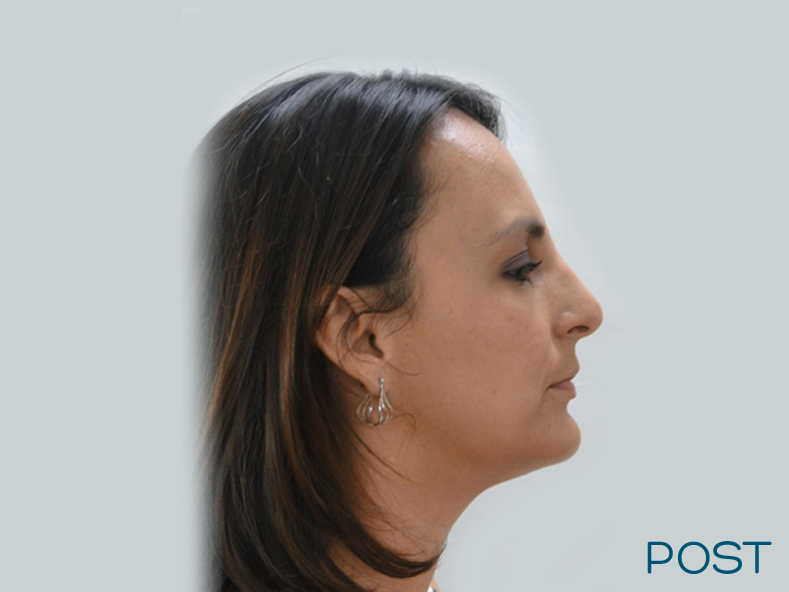 rinoplastia post