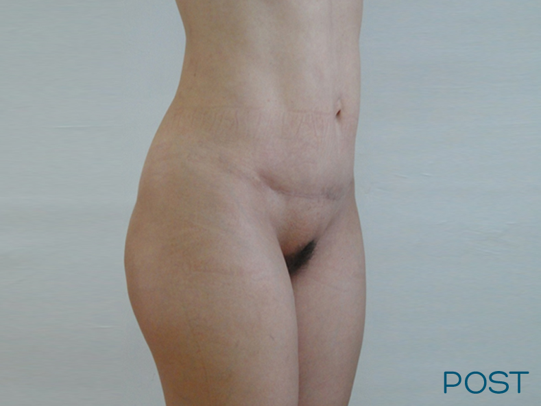 galeria abdominoplastia post 1