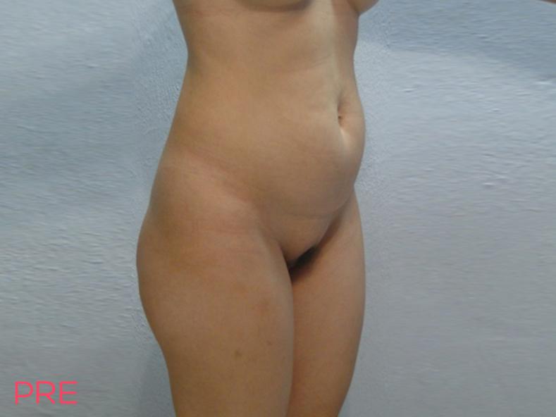 galeria abdominoplastia pre 1